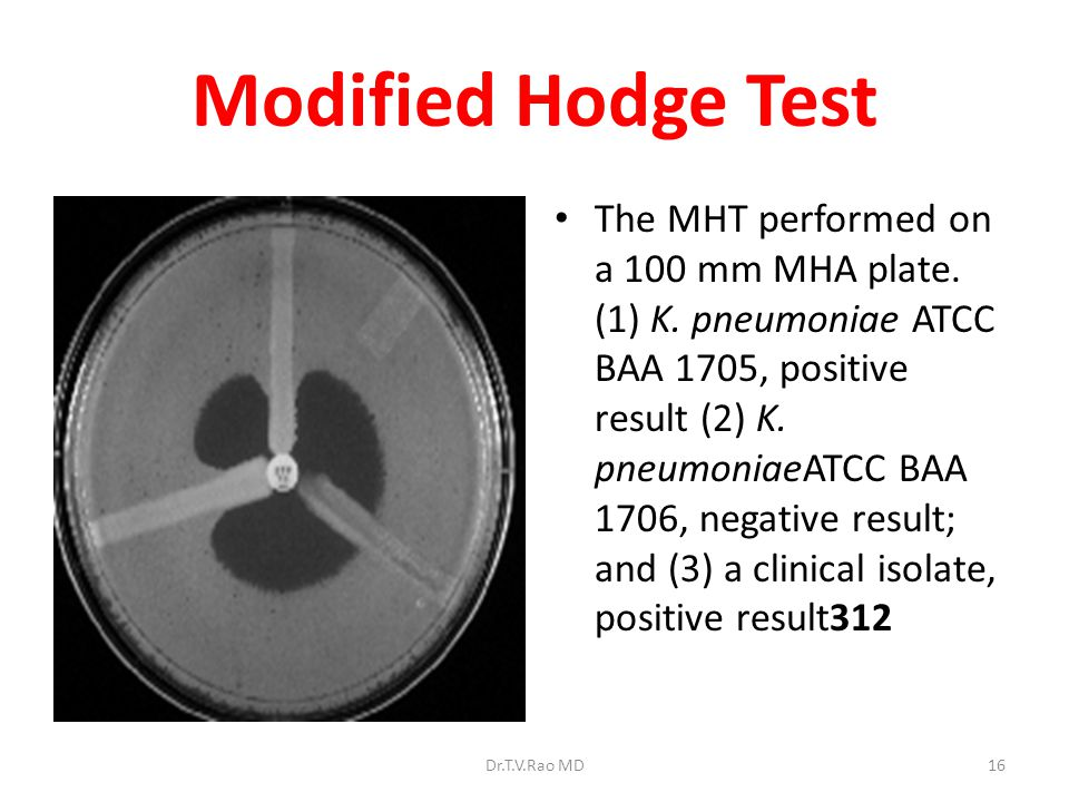 Modified Hodge Test