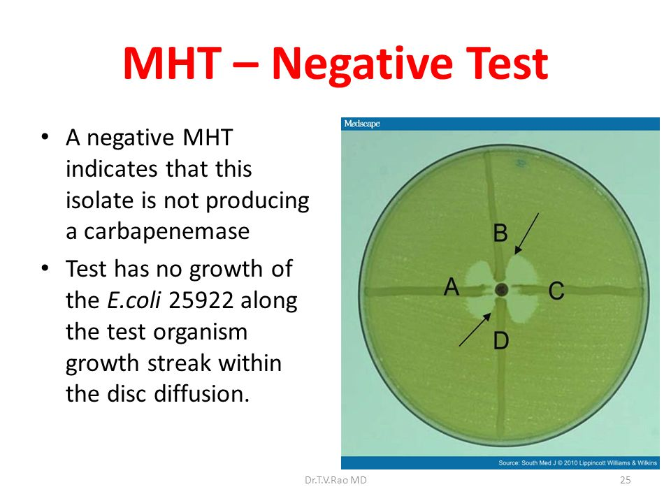 MHT – Negative Test A negative MHT indicates that this isolate is not producing a carbapenemase.