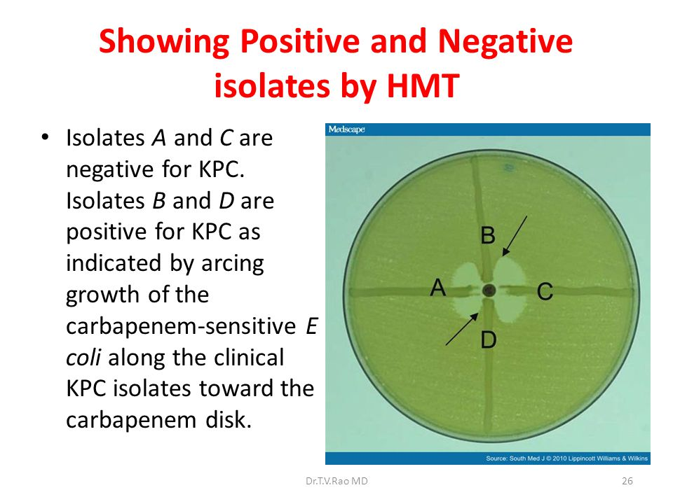 Showing Positive and Negative isolates by HMT