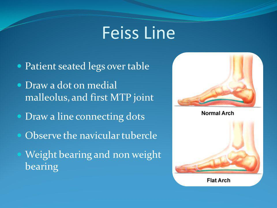 Feiss Line Patient seated legs over table