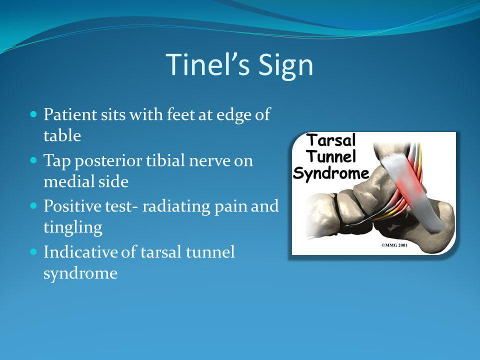 Tinel's Sign Patient sits with feet at edge of table