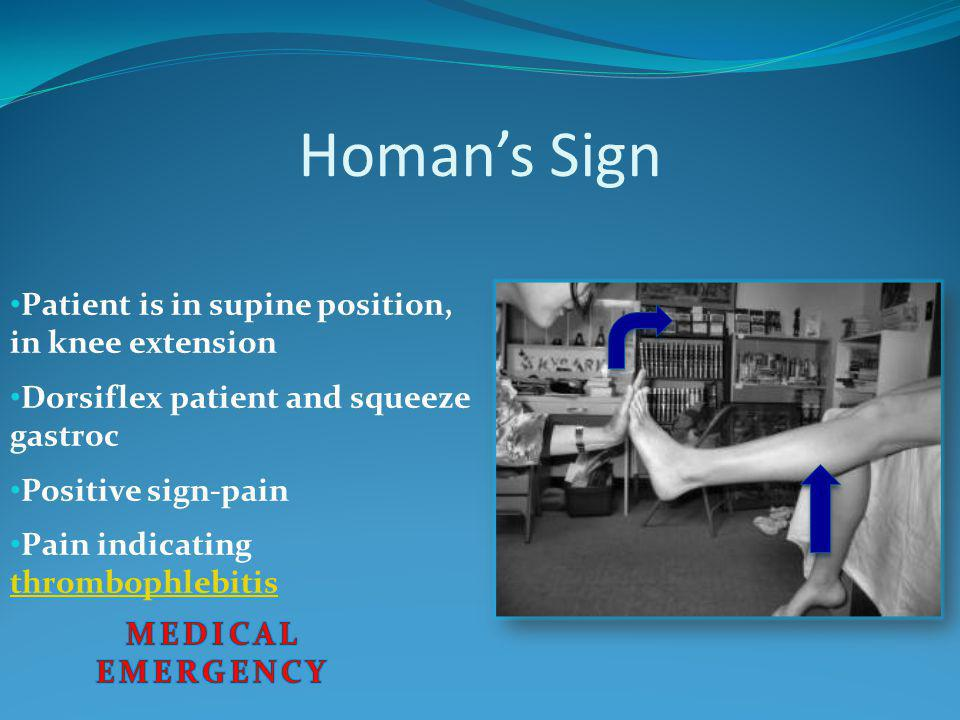 Homan's Sign Patient is in supine position, in knee extension