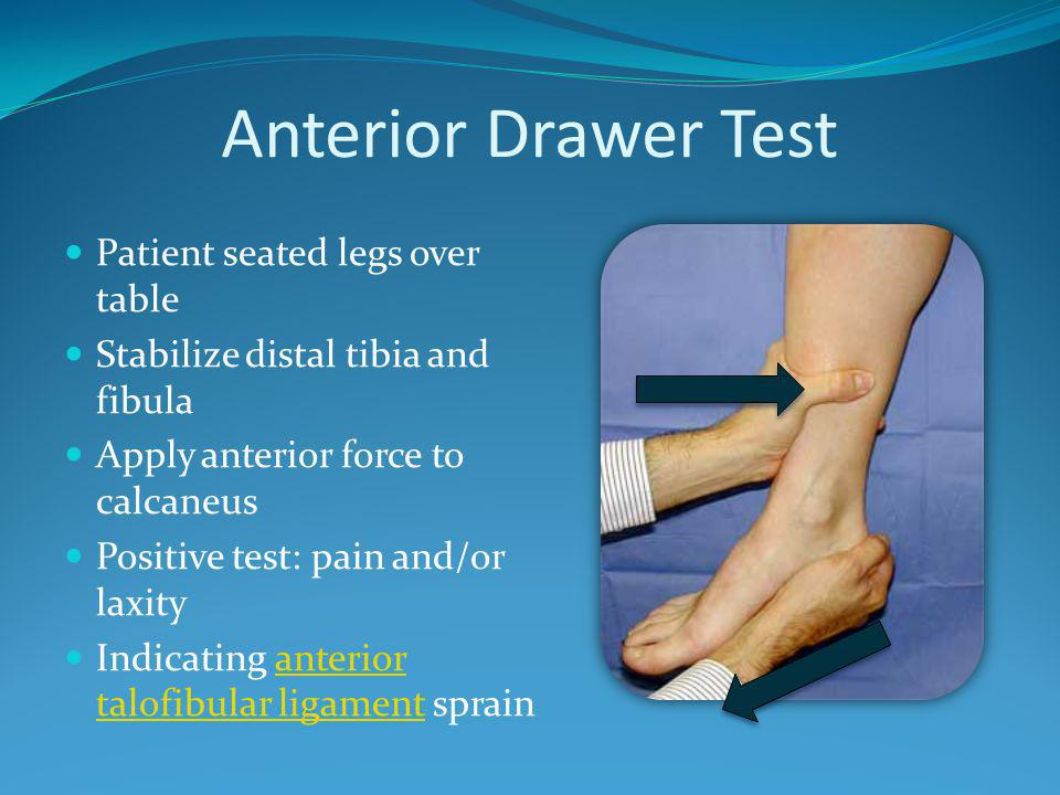 Anterior Drawer Test Patient seated legs over table