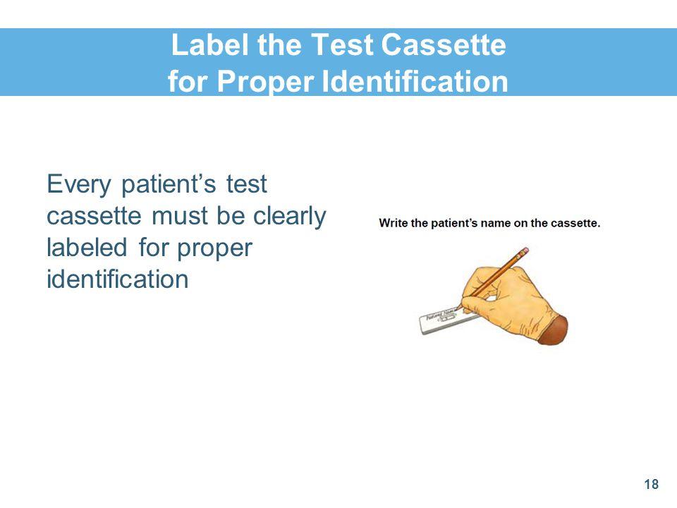 Label the Test Cassette for Proper Identification