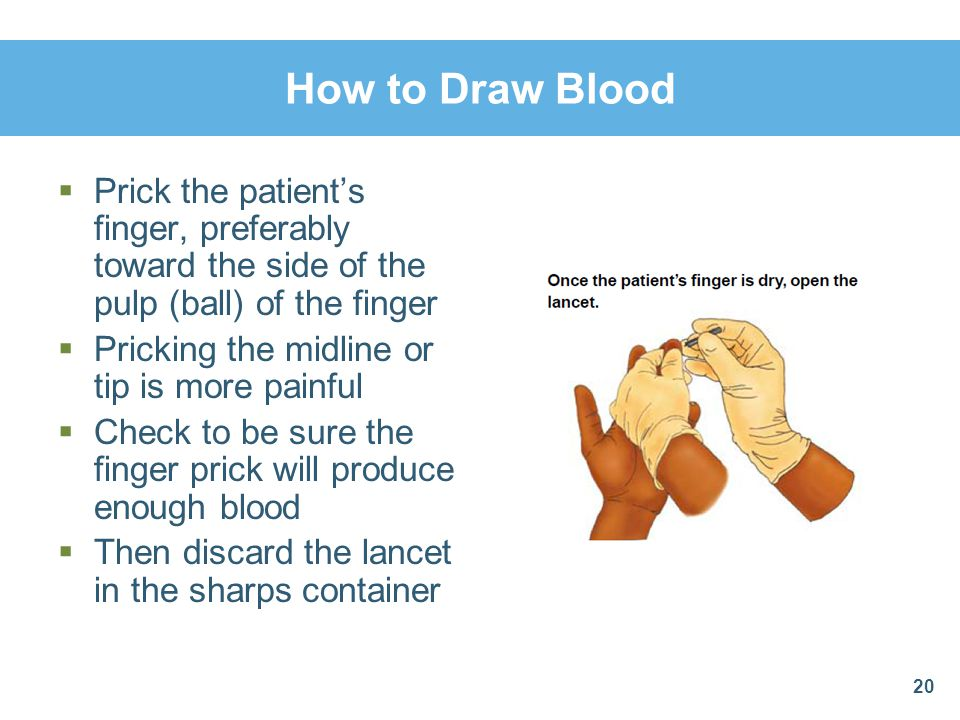 How to Draw Blood Prick the patient's finger, preferably toward the side of the pulp (ball) of the finger.