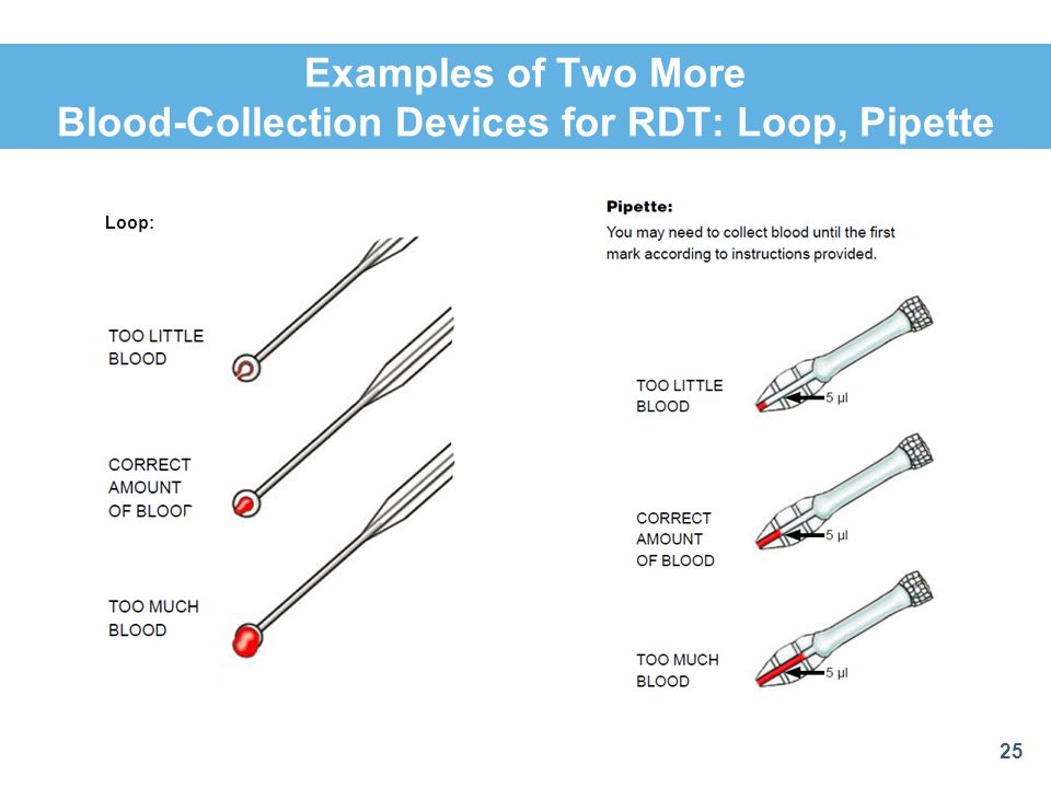 Examples of Two More Blood-Collection Devices for RDT: Loop, Pipette