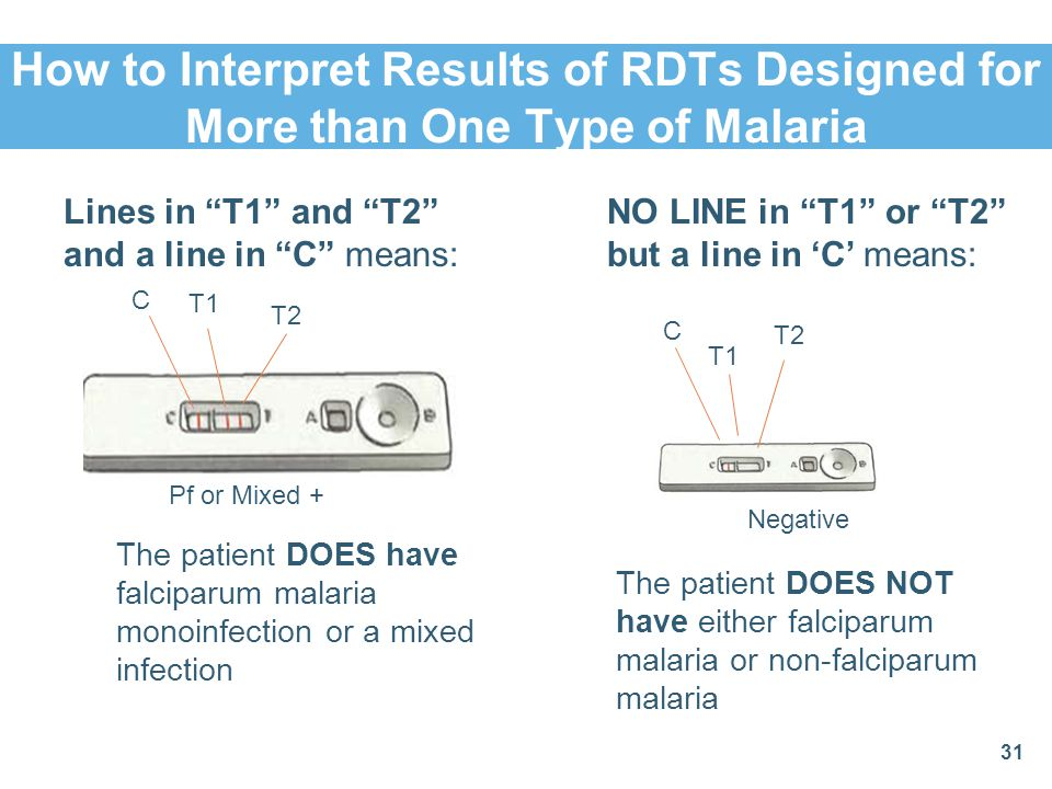 How to Interpret Results of RDTs Designed for More than One Type of Malaria