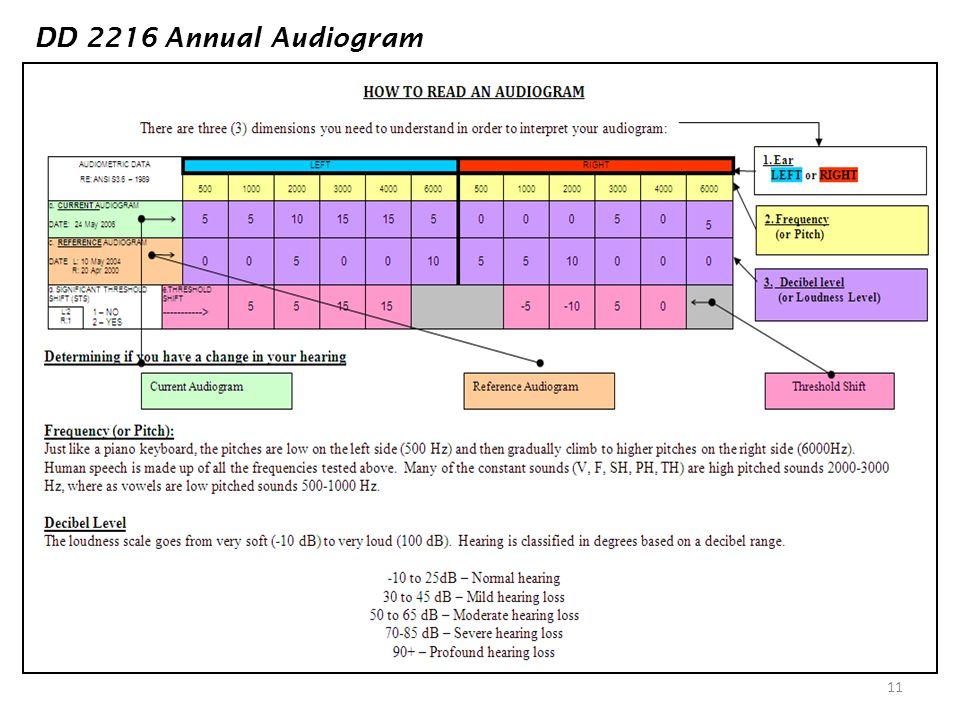 DD 2216 Annual Audiogram DD 2216 ANNUAL AUDIOGRAM
