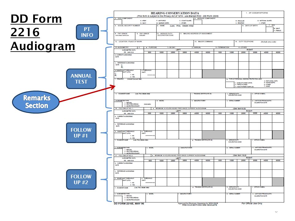 DD Form 2216 Audiogram Remarks Section PT INFO ANNUAL TEST FOLLOW