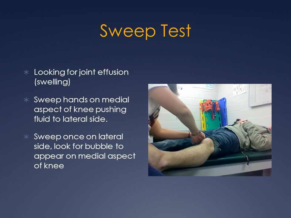 Sweep Test Looking for joint effusion (swelling)