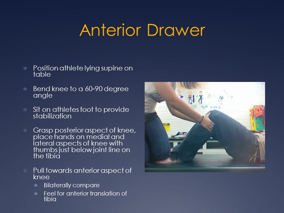 Anterior Drawer Position athlete lying supine on table
