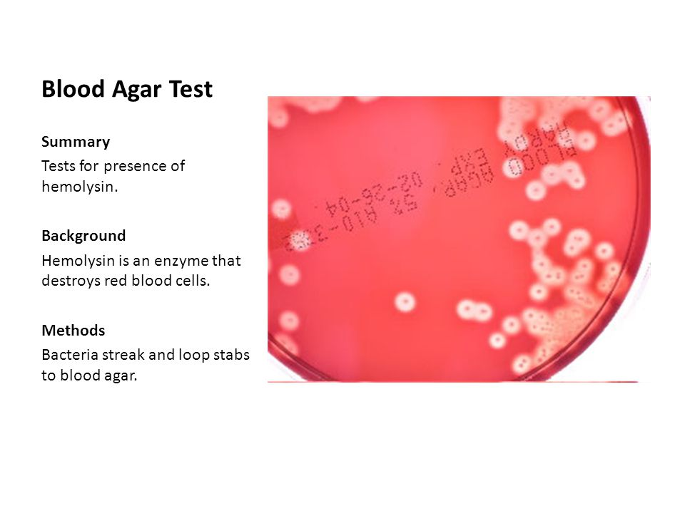 Blood Agar Test Summary Tests for presence of hemolysin. Background
