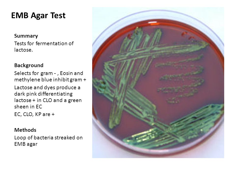 EMB Agar Test Summary Tests for fermentation of lactose. Background