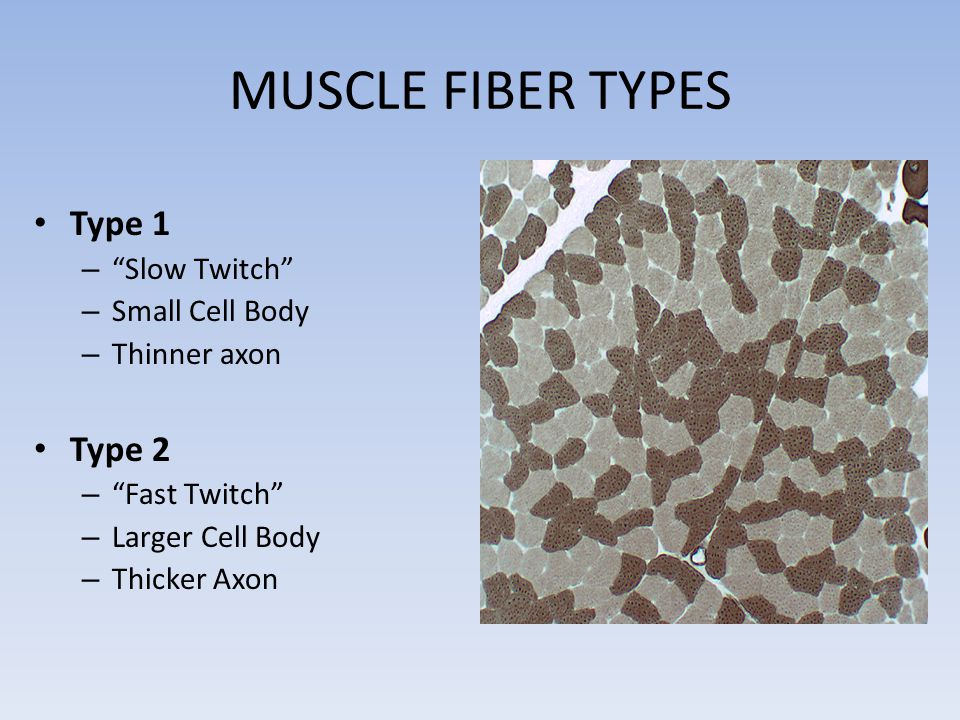 MUSCLE FIBER TYPES Type 1 Type 2 Slow Twitch Small Cell Body