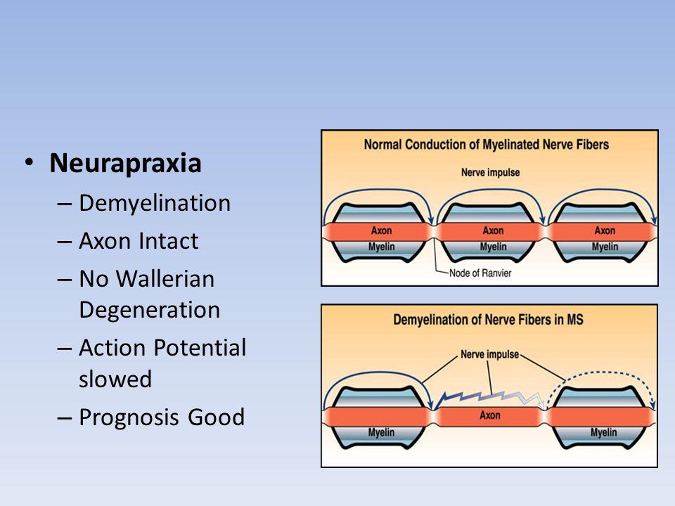 Neurapraxia Demyelination Axon Intact No Wallerian Degeneration