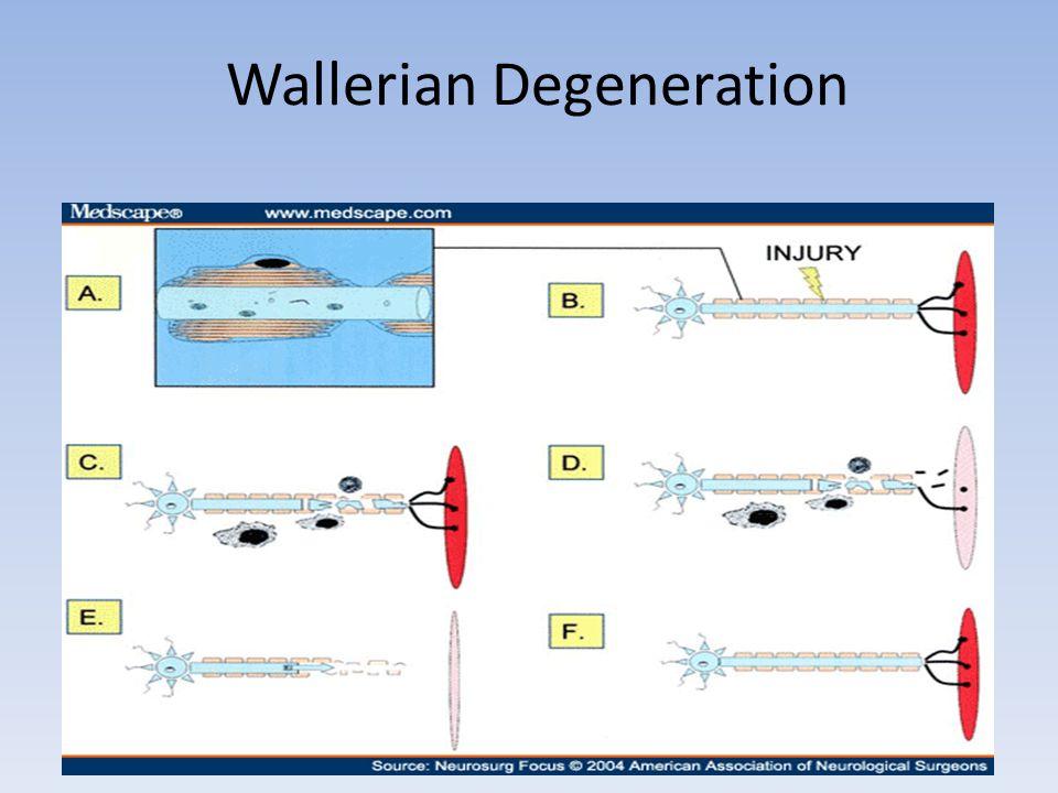 Wallerian Degeneration
