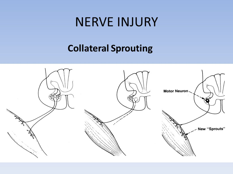 NERVE INJURY Collateral Sprouting