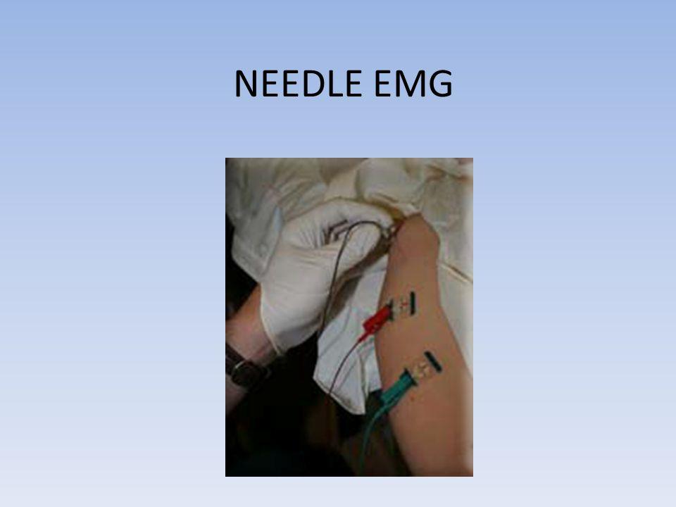 NEEDLE EMG Summation of MUAP