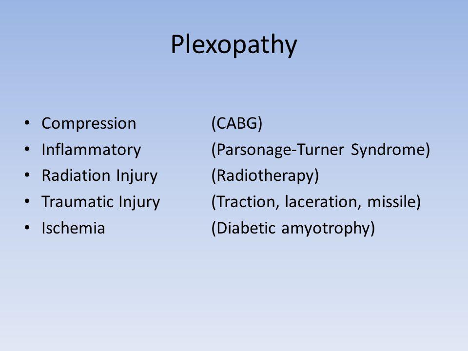 Plexopathy Compression (CABG) Inflammatory (Parsonage-Turner Syndrome)