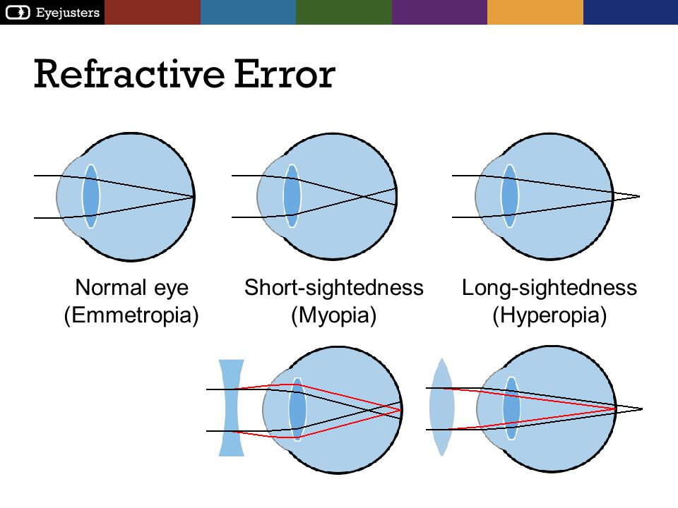Refractive Error Normal eye (Emmetropia) Short-sightedness (Myopia)