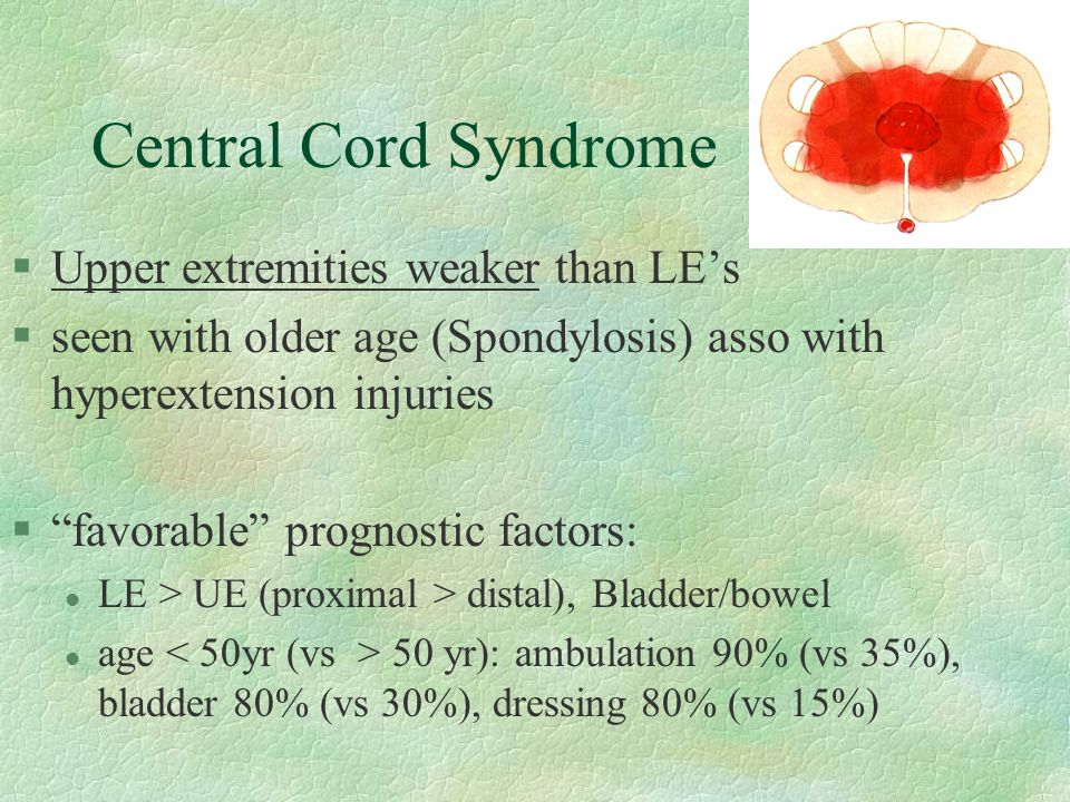 Central Cord Syndrome Upper extremities weaker than LE's