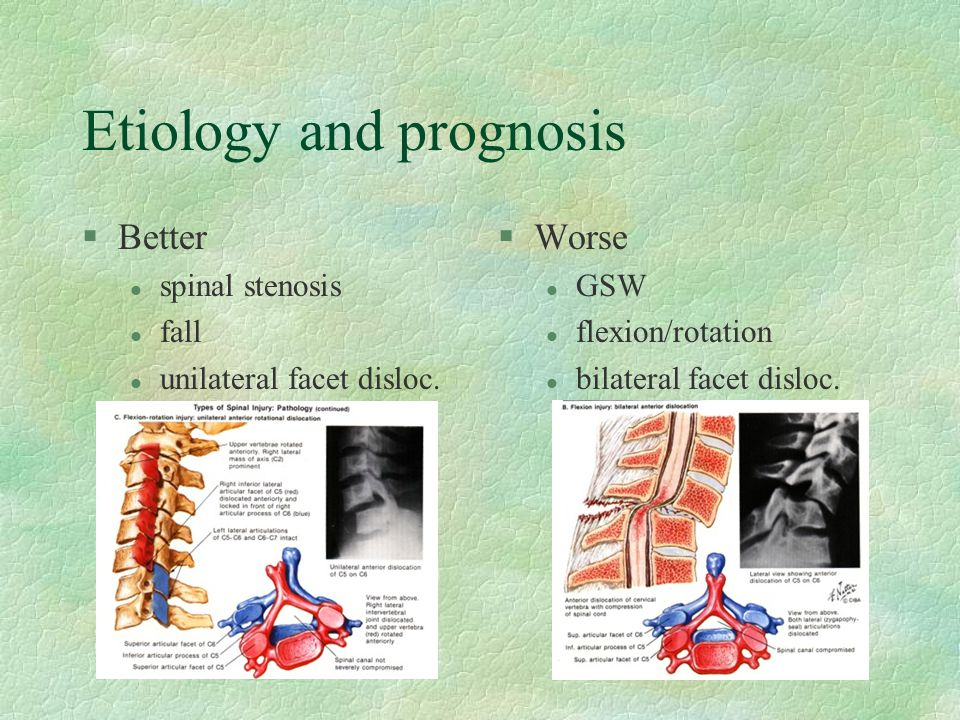 Etiology and prognosis