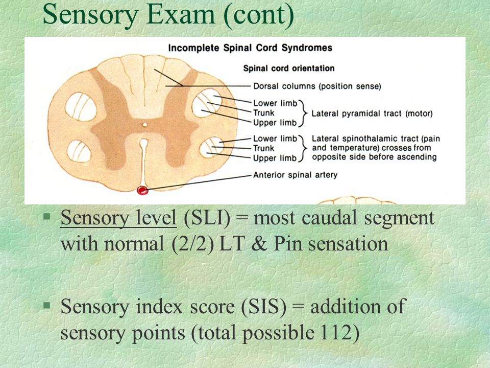 Sensory Exam (cont) Sensory level (SLI) = most caudal segment with normal (2/2) LT & Pin sensation.