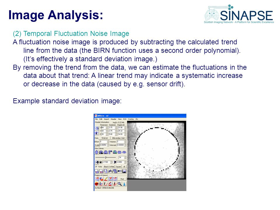 Image Analysis: (2) Temporal Fluctuation Noise Image