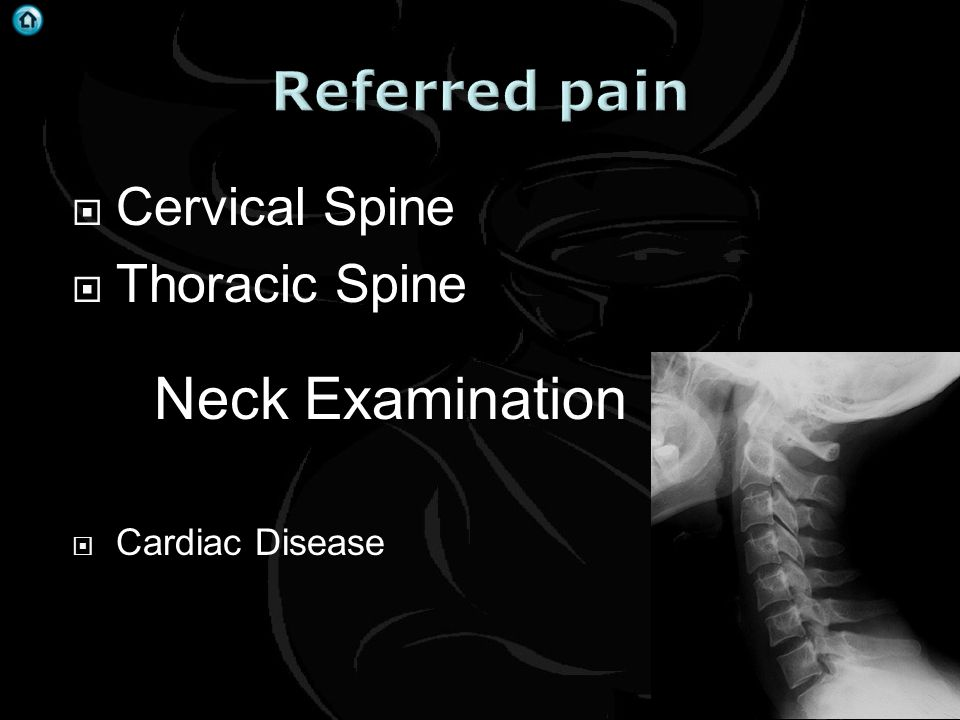Neck Examination Referred pain Cervical Spine Thoracic Spine