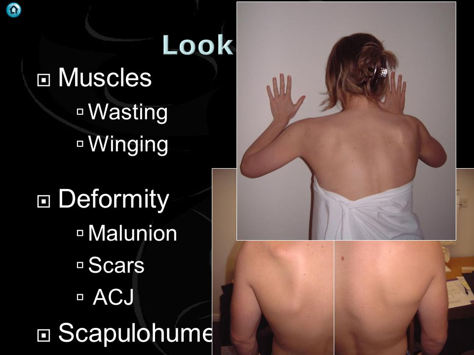 Look Muscles Deformity Scapulohumeral rhythm Wasting Winging Malunion