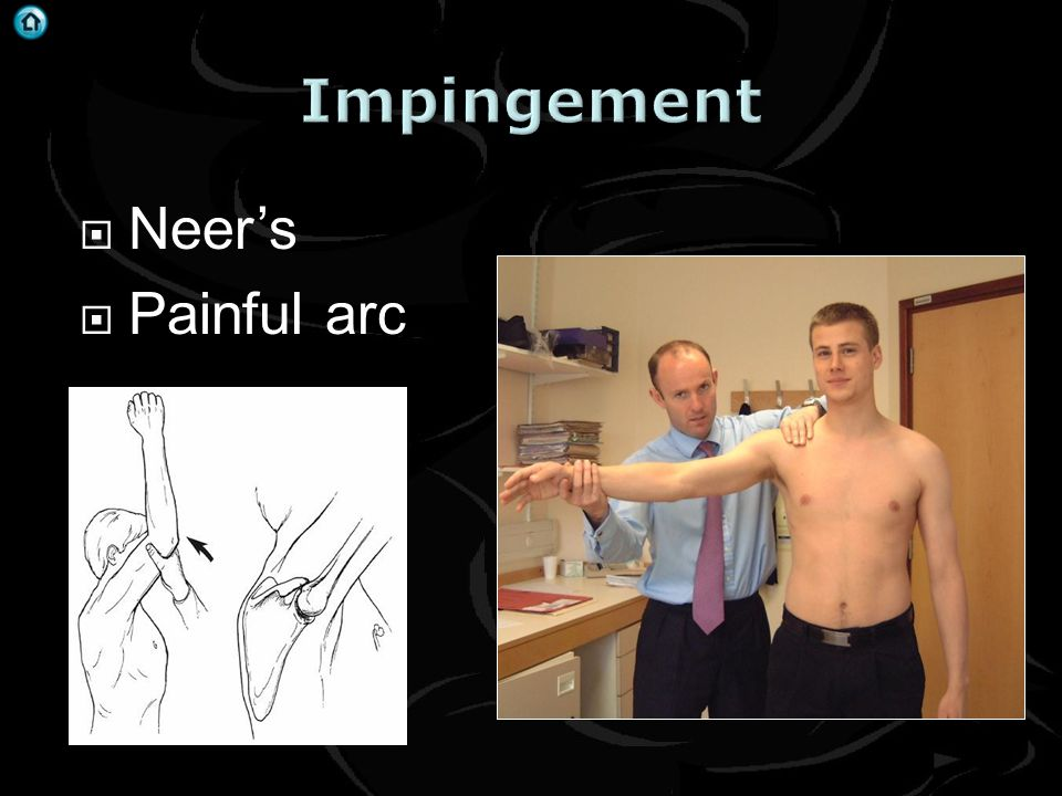 Impingement Neer's Painful arc