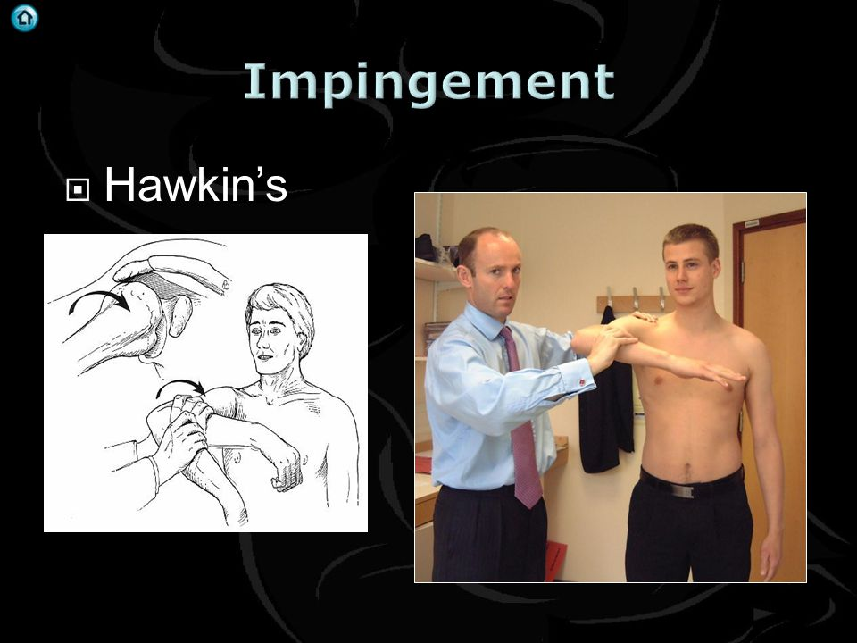 Impingement Hawkin's