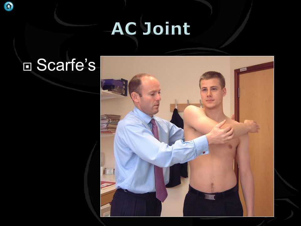AC Joint Scarfe's