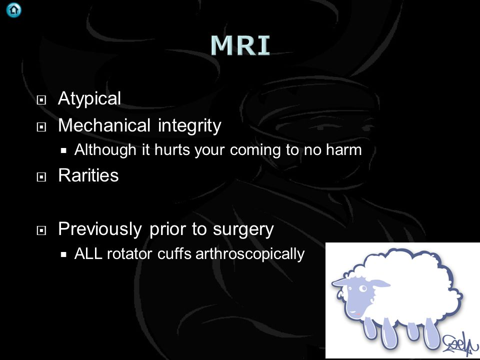 MRI Atypical Mechanical integrity Rarities Previously prior to surgery