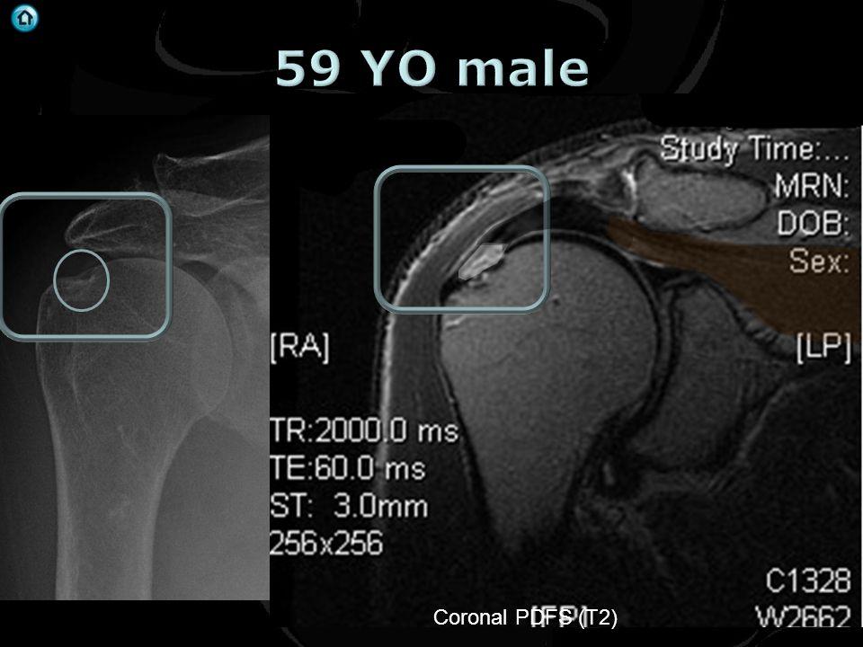 59 YO male Coronal PDFS (T2)