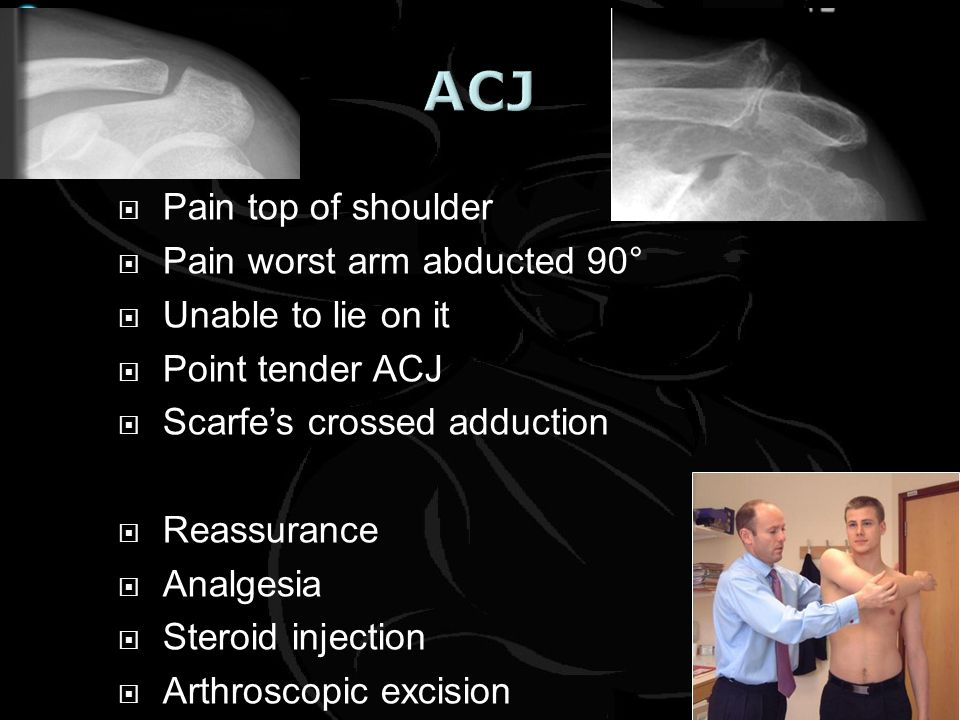 ACJ Pain top of shoulder Pain worst arm abducted 90°