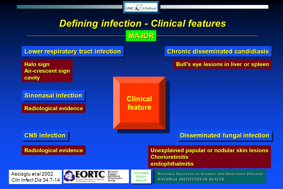 Defining infection - Clinical features