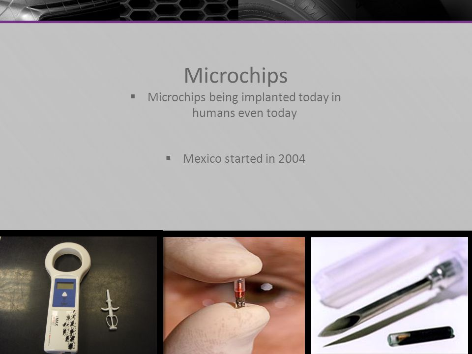Microchips being implanted today in humans even today