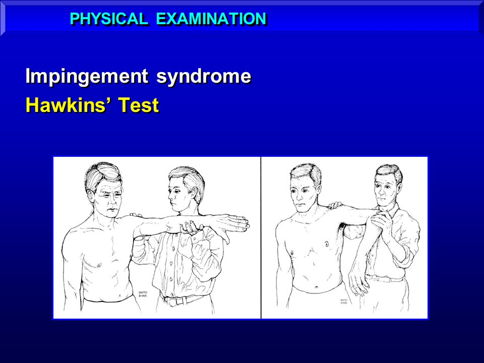 PHYSICAL EXAMINATION Impingement syndrome Hawkins' Test