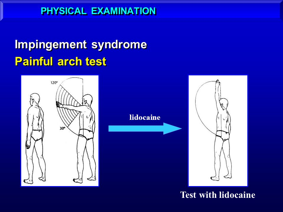 Impingement syndrome Painful arch test PHYSICAL EXAMINATION