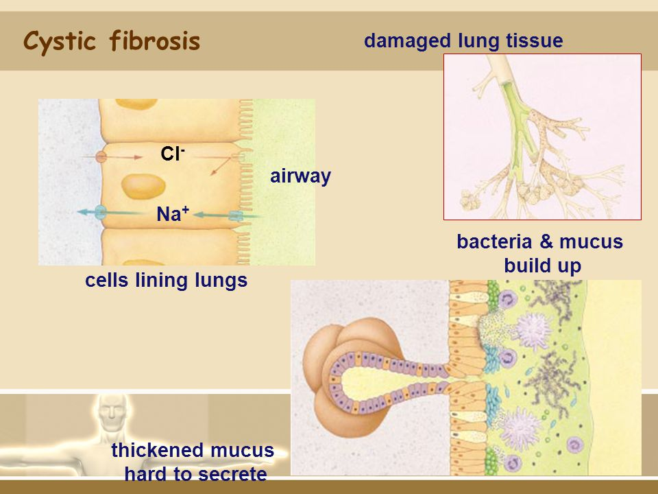 bacteria & mucus build up thickened mucus hard to secrete