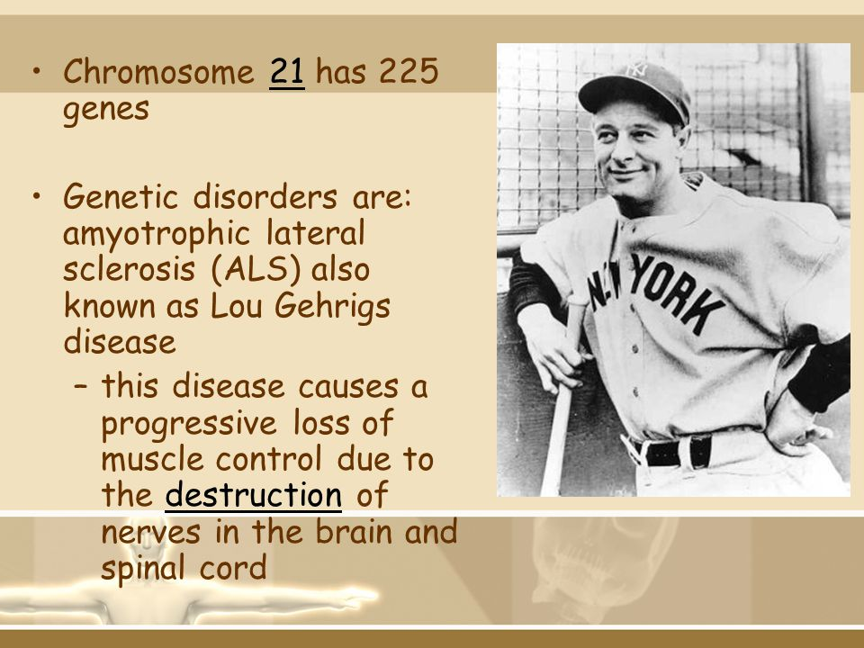 Chromosome 21 has 225 genes Genetic disorders are: amyotrophic lateral sclerosis (ALS) also known as Lou Gehrigs disease.