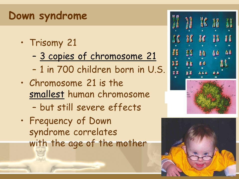 Down syndrome Trisomy 21 3 copies of chromosome 21