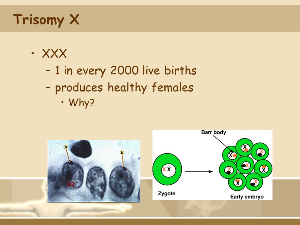 Trisomy X XXX 1 in every 2000 live births produces healthy females