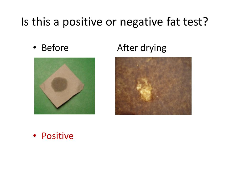 Is this a positive or negative fat test
