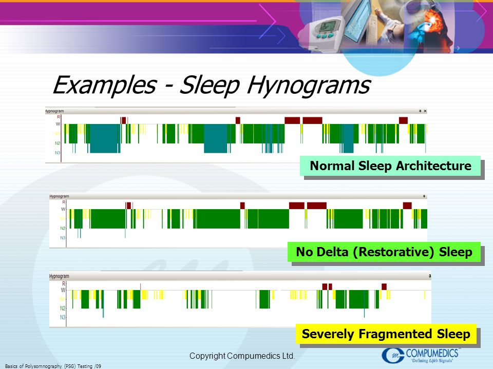 Examples - Sleep Hynograms