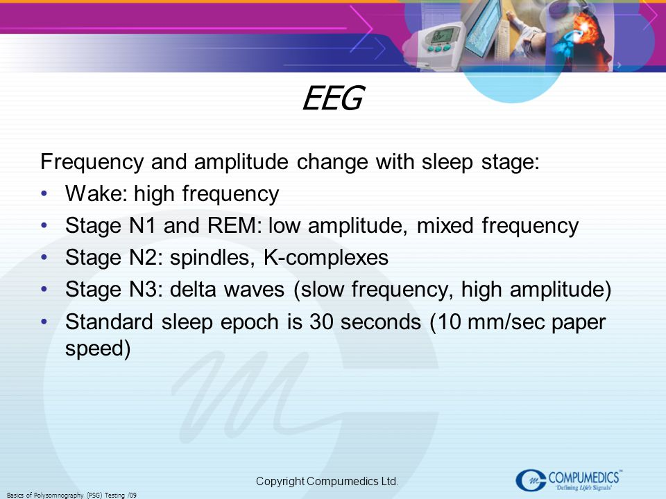EEG Frequency and amplitude change with sleep stage: