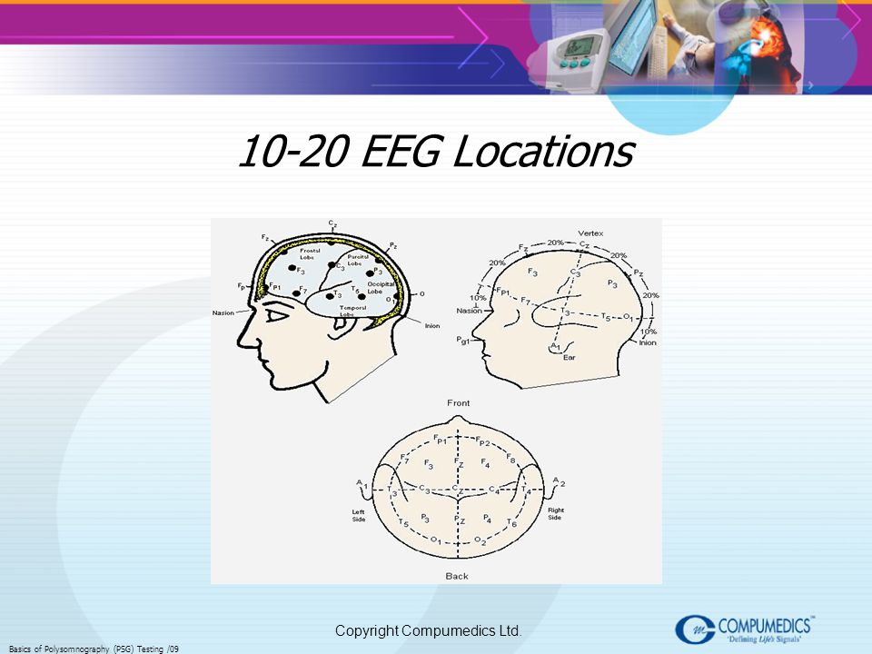10-20 EEG Locations