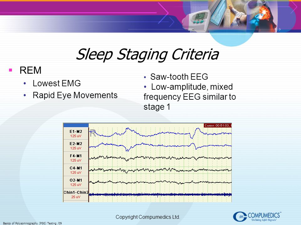 Sleep Staging Criteria