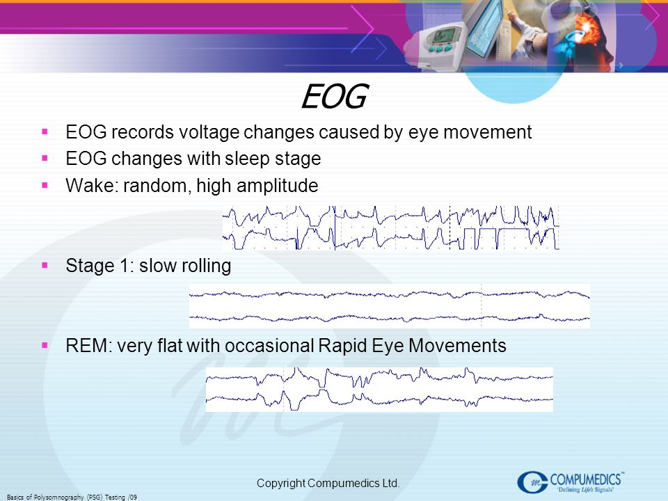 EOG EOG records voltage changes caused by eye movement